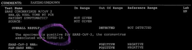 A digitization of the official notice of Pato Hebert's positive Covid-19 test result. From Hebert's Disembodies series, 2020. (Pato Hebert)